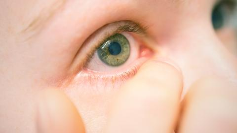 Ein gerötetes Auge in Nahaufnahme.