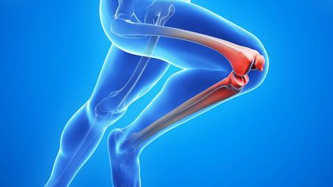 Grafik eines sich bewegenden Menschen mit Fokus auf den Knien.