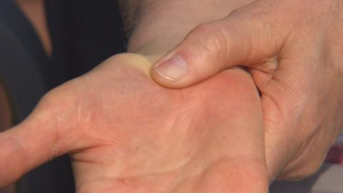 Arthrose im Daumen und Tennisarm– Mittelhandknochen