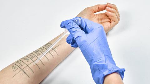 Ei8n Arzt führt einen Allergietest durch.