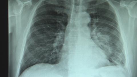 Röntgenbild einer Lungenentzündung