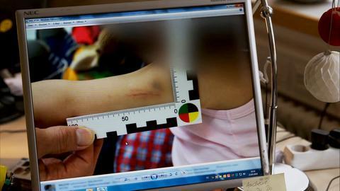 Ein Foto eines potentiell misshandelten Kindes auf einem PC-Bildschirm.