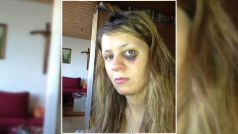 Toxische Beziehungen: Selfie einer jungen Frau mit einem blauen Auge.
